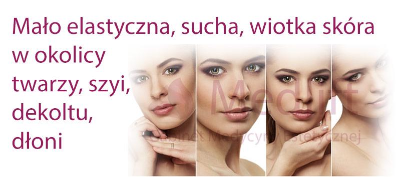 Mało elastyczna, sucha, wiotka skóra w okolicy twarzy, szyi, dekoltu, dłoni
